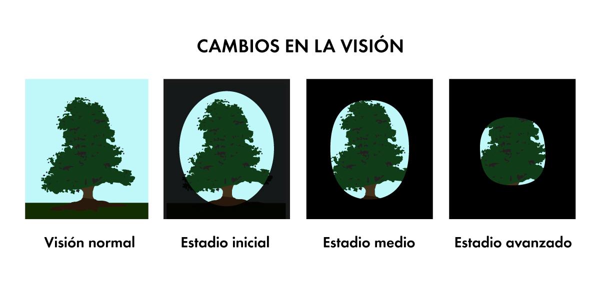cambios-vision